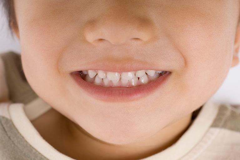 お子さんの歯並びをチェックしましょう