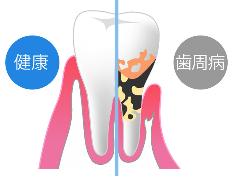 虫歯や歯周病が発症しやすくなります